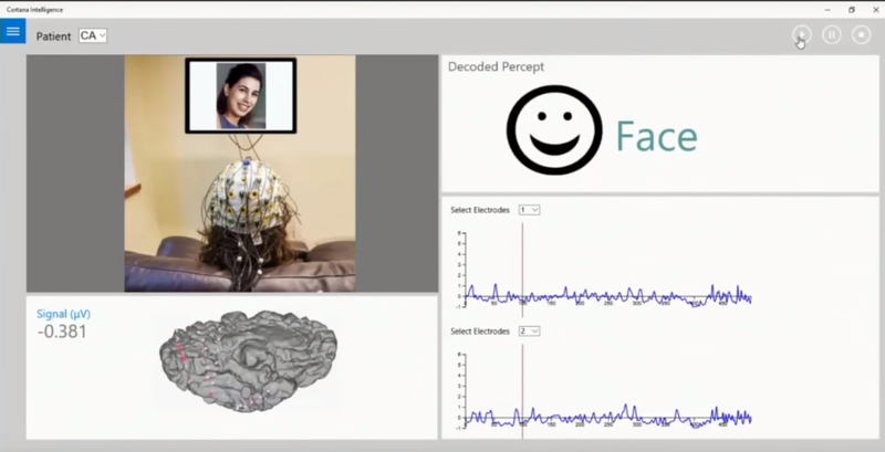 Help improve treatment for brain injuries using machine learning and R